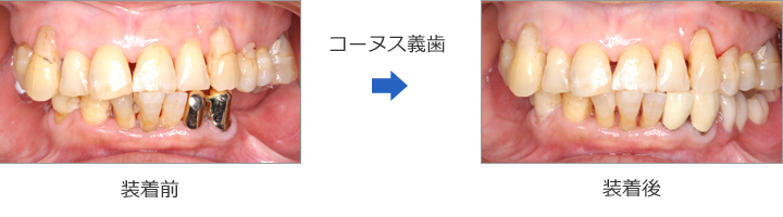 コーヌス義歯の症例④ 60代女性