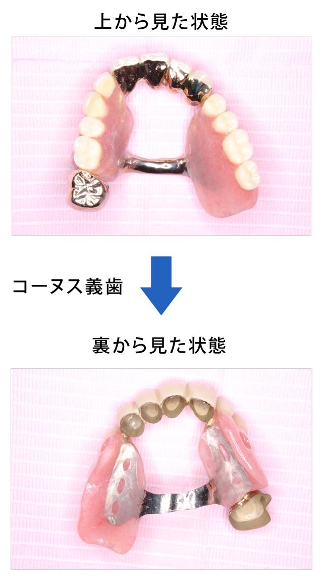 コーヌス義歯の症例① 70代女性