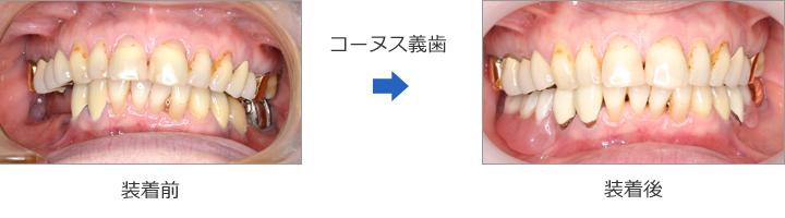 コーヌス義歯の症例② 70代女性