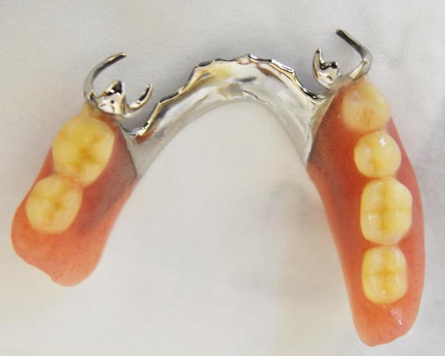 金属床の部分入れ歯