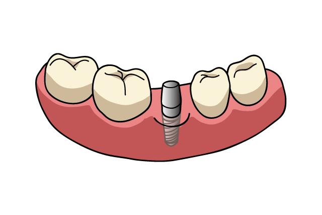 第2の永久歯と呼ばれる使い心地