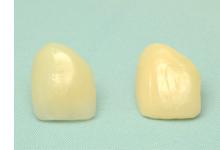 補綴物(人工の歯)の作成・装着