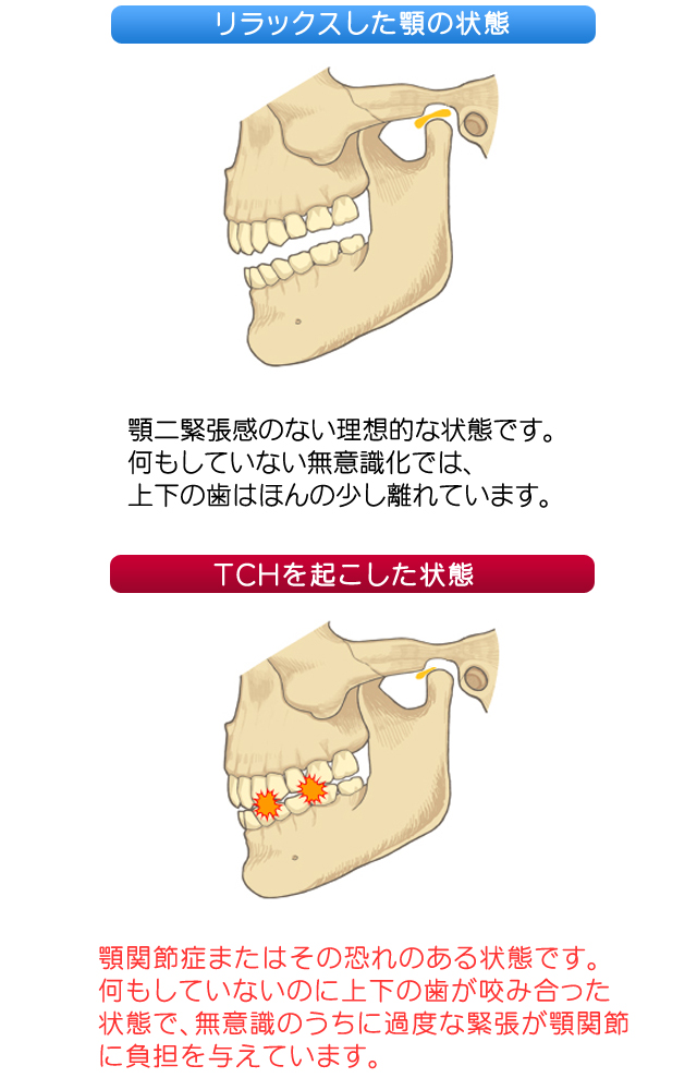 TCH(歯列接触癖)