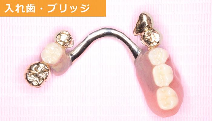 久喜のいしはた歯科クリニック 良い入れ歯