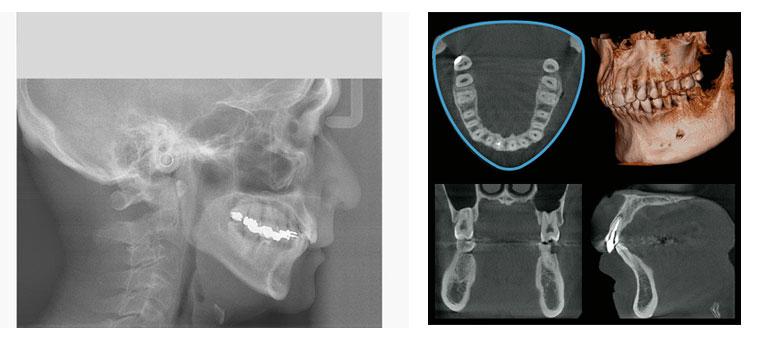 CTレントゲン いしはた歯科 久喜