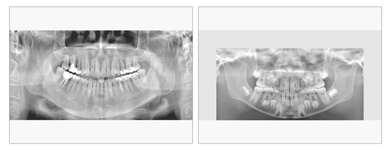 歯科用CTレントゲン いしはた歯科