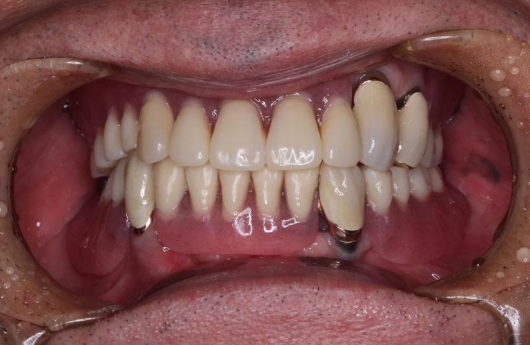コーヌス義歯 装着後