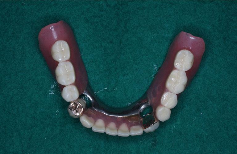 連結コーヌス義歯