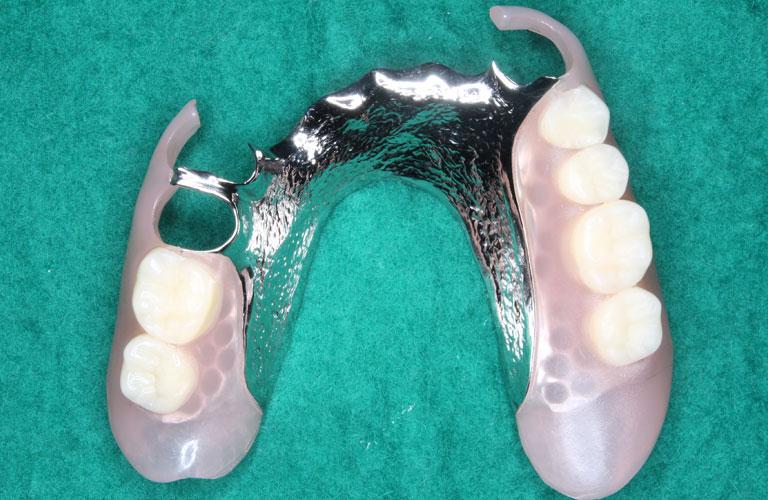 エステショット義歯