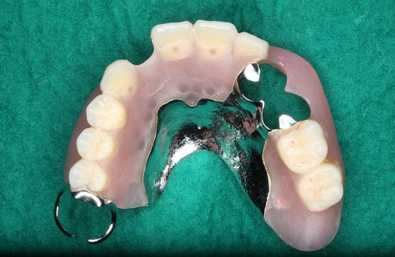 エステショット症例3 製作したエステショット義歯